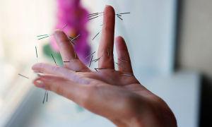 Похудение с су джок терапией — атлас точек на ладони